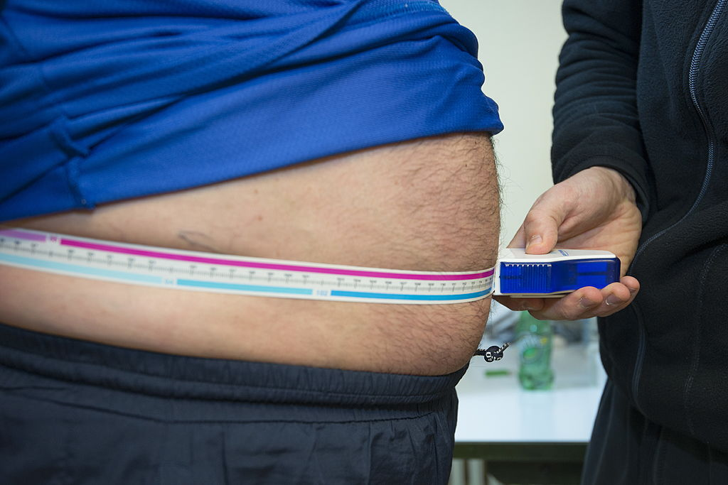 A man's large gut is exposed under his shirt as someone measures his waist