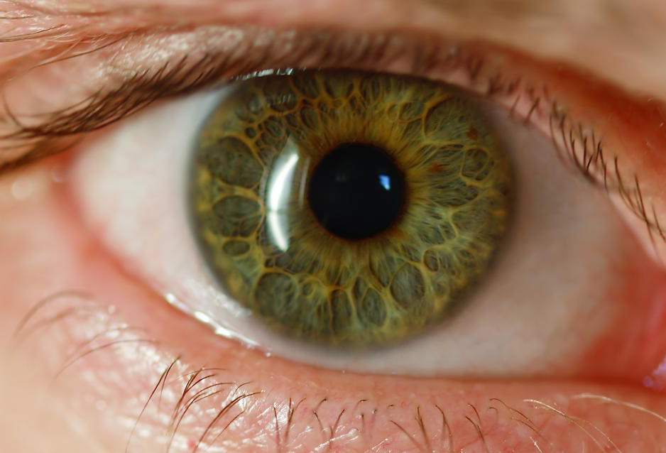 A close-up shows the iris of a green eye.