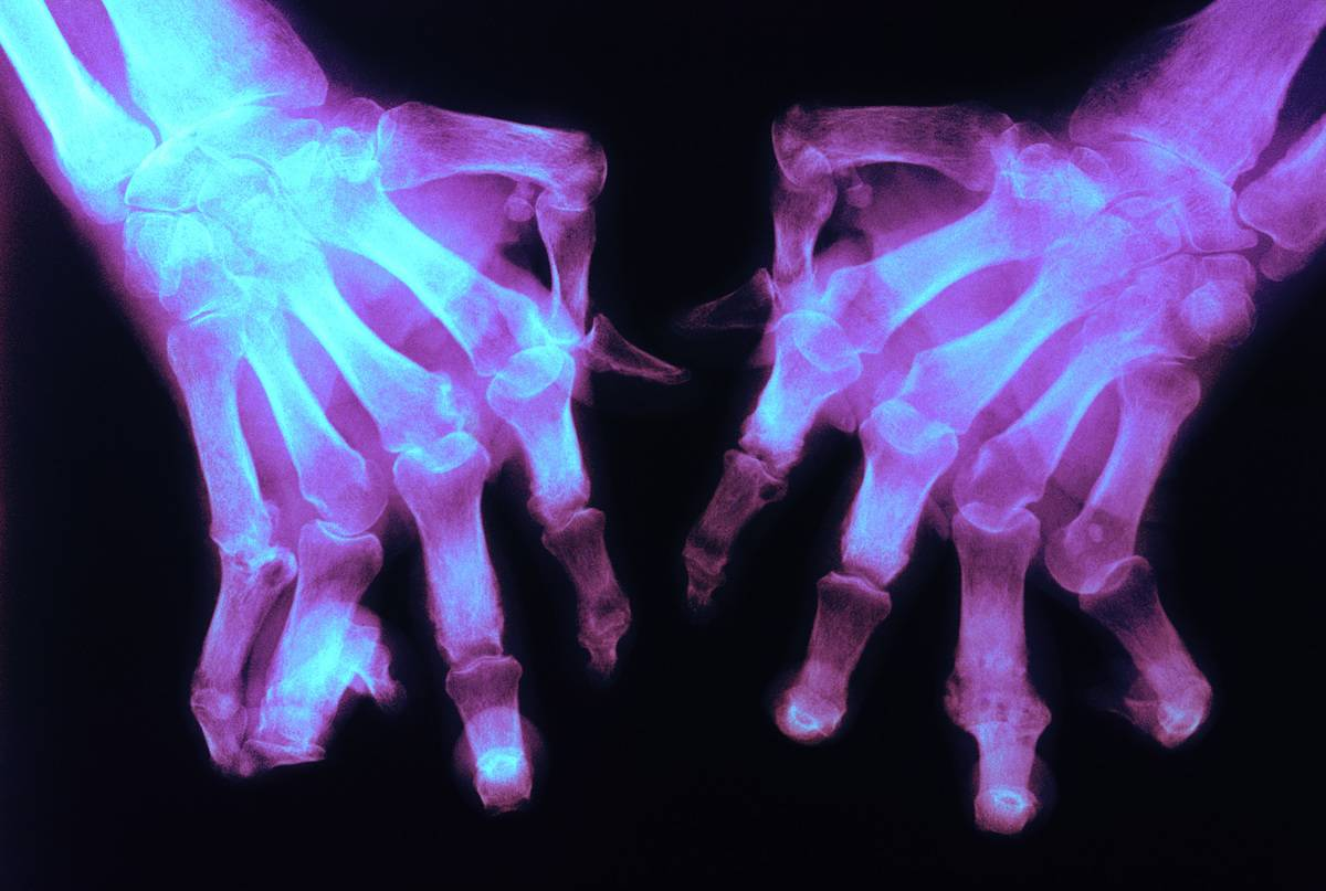 A x-ray shows hands of a person with rheumatoid arthritis.