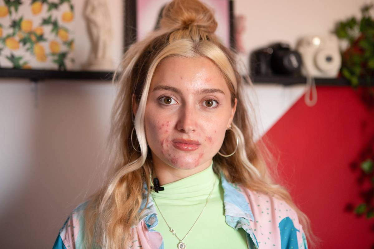 A woman's face has acne near her chin.