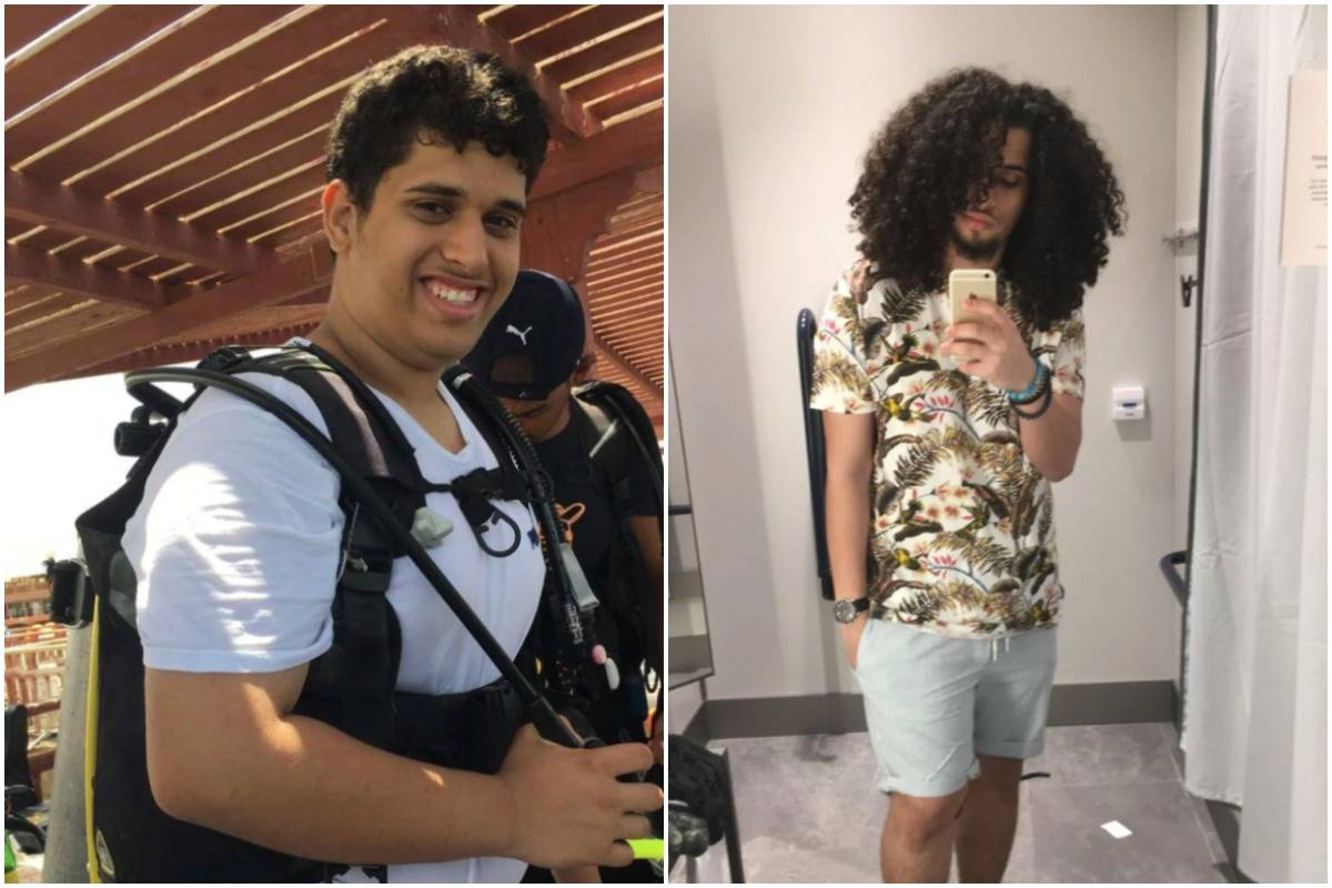 A man shows his glow-up change between age 17 (left) and 20 (right).