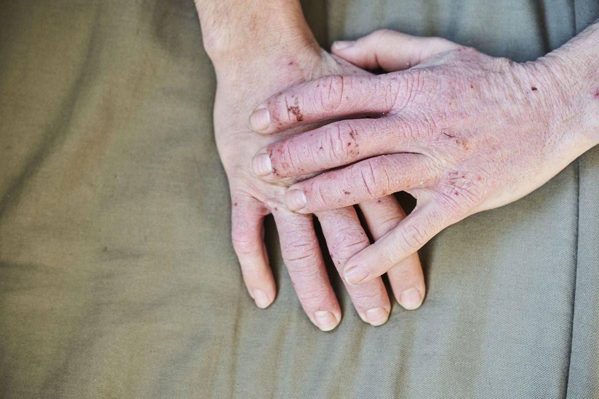A person has Dyshidrosis, also known as acute vesiculobullous hand eczema, on their hands.