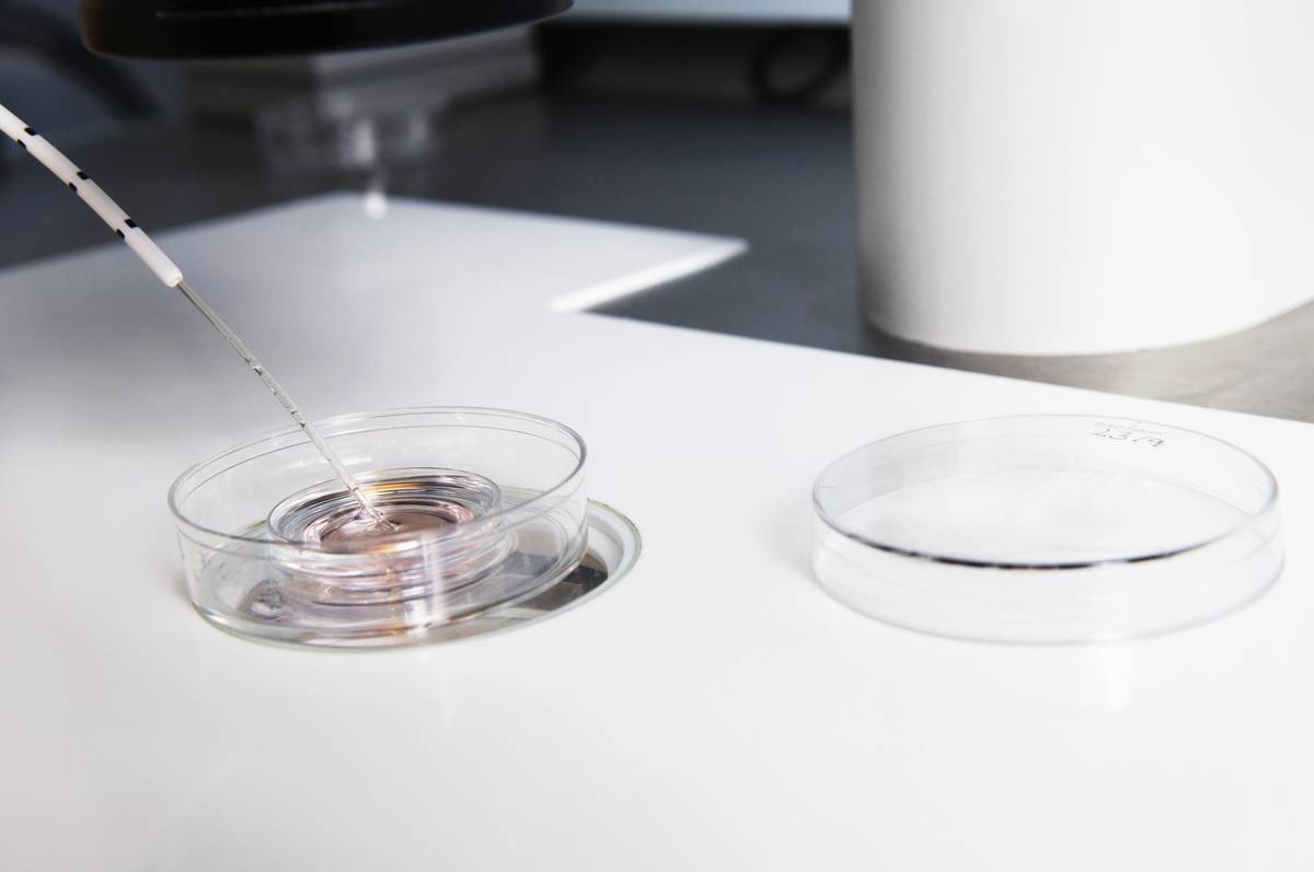 During the IVF process, embryos are being selected from a petri dish.