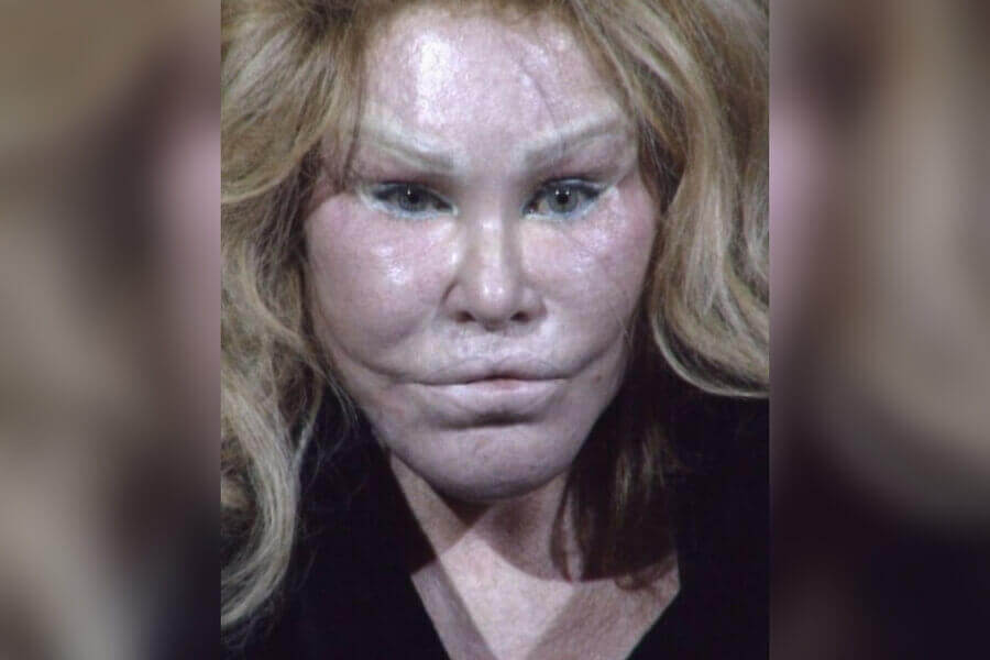 jocelyn-wildenstein-52920.jpg