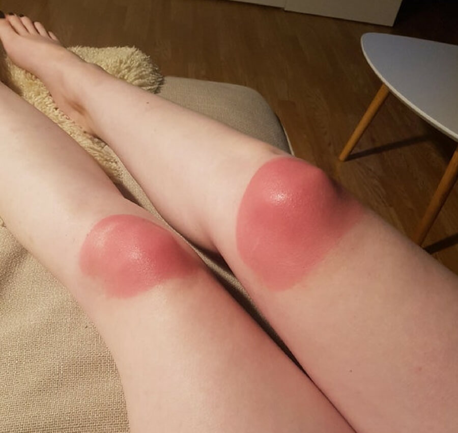 sunburn from the ripped jeans.jpg